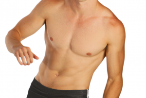 man laser hair removal for men toronto pain free