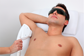 laser hair removal men toronto