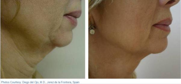 skin tightening toronto soprano xl alma lasers