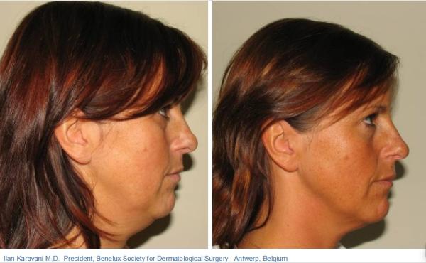 skin_tightening_pain_free_hair_salon_toronto